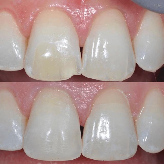 Biomimetic Dentistry1