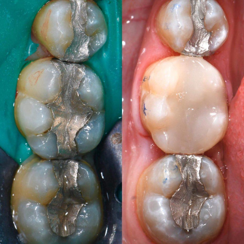 Biomimetic Dentistry2
