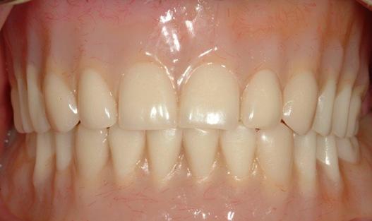 Denture-6
