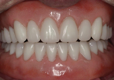 Implant-Assisted-Dentures-1
