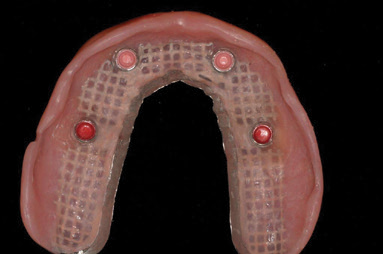 Implant-Assisted-Dentures-4