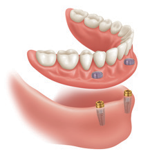 Implant-Assisted-Dentures-5