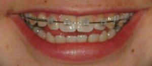 clear brackets