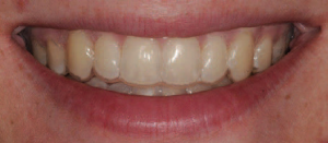 clear aligner trays