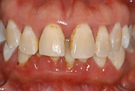 Periodontal-Therapy-1