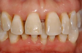 Periodontal-Therapy-2