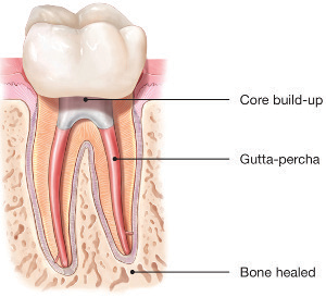 Root-Canal-Treatment-2