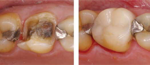 Silver-Fillings-Removed-3