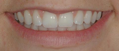 Teeth-Bleaching-3