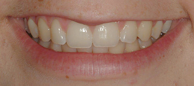 Teeth-Bleaching-4