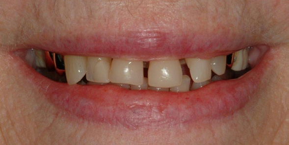 Tooth-Colored-Filling-3