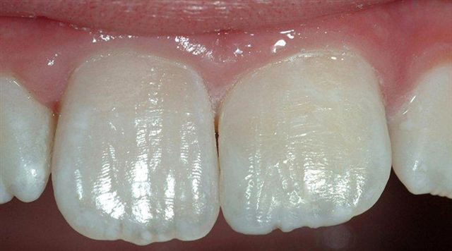 Tooth-Colored-Filling-5