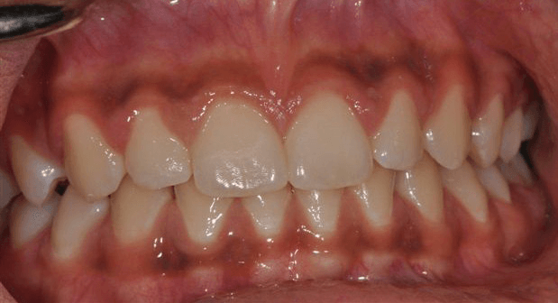 Mouth-Lesions-Colored-Areas