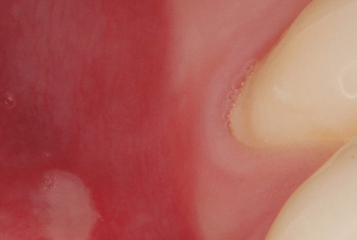 Mouth-Lesions-Ulcers