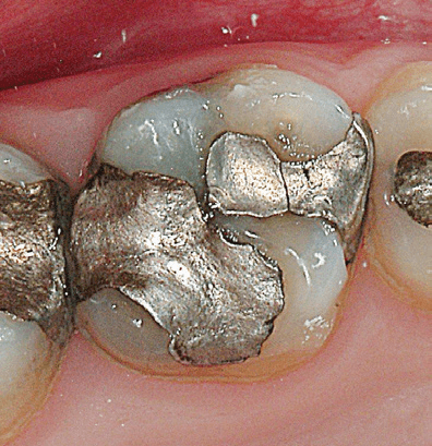 Silver-Fillings-Removed-1
