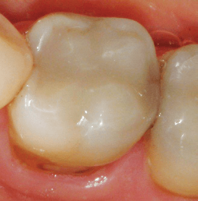 Silver-Fillings-Removed-4