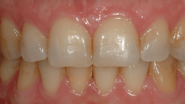 Teeth-Bleaching-2