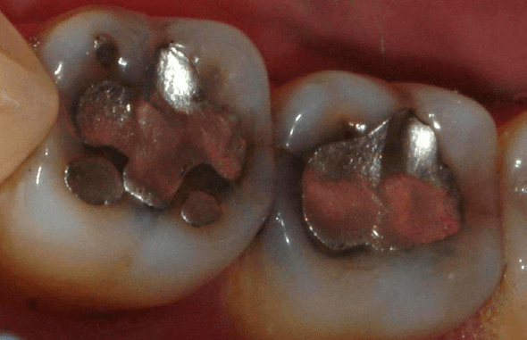 Tooth-Colored-Filling-1