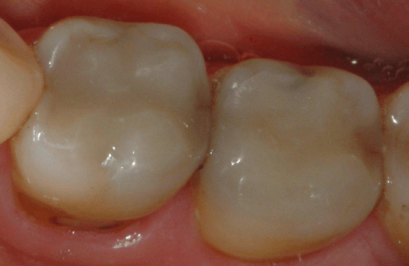 Tooth-Colored-Filling-2