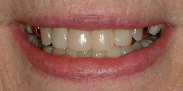 Tooth-Colored-Filling-41