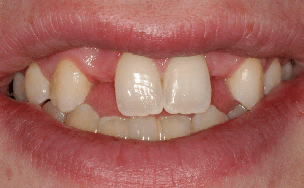 Tooth-Supported-Bridge-3