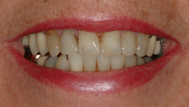 Tooth-Supported-Crown-1