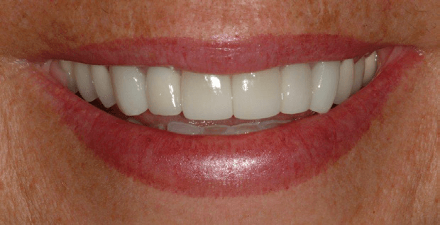 Tooth-Supported-Crown-2