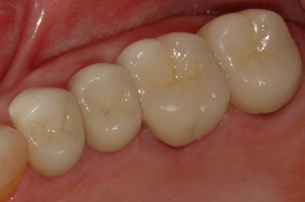 Tooth-Supported-Crown-4