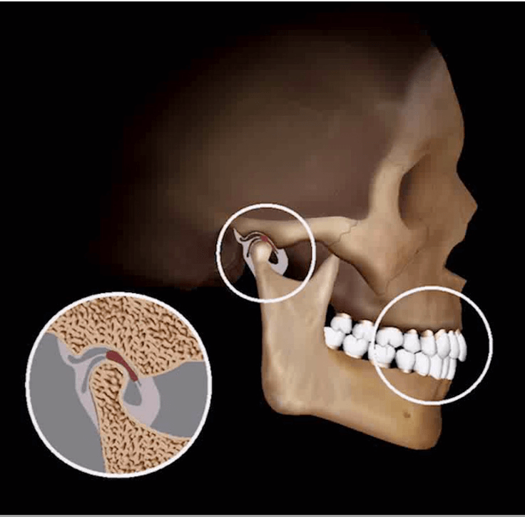 Treatment-of-TMJ