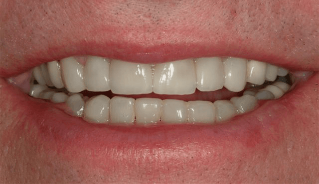 Teeth with veneers